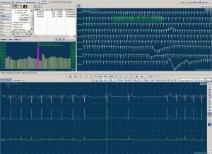 Комплекс суточного мониторирования ЭКГ «МИОКАРД-ХОЛТЕР-2»